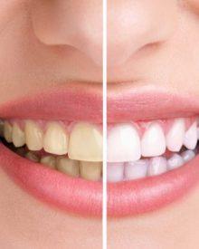 Macunsuz Diş Temizleme Yöntemi